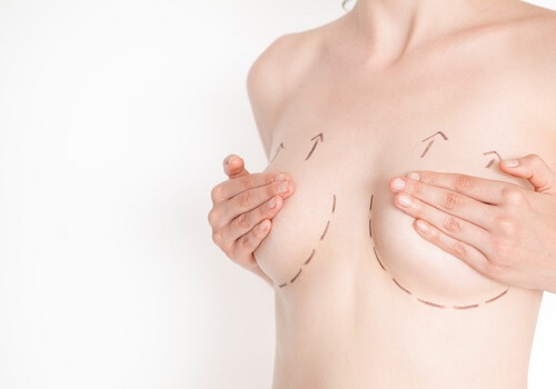 Woman with marks on her breasts for cosmetic surgery